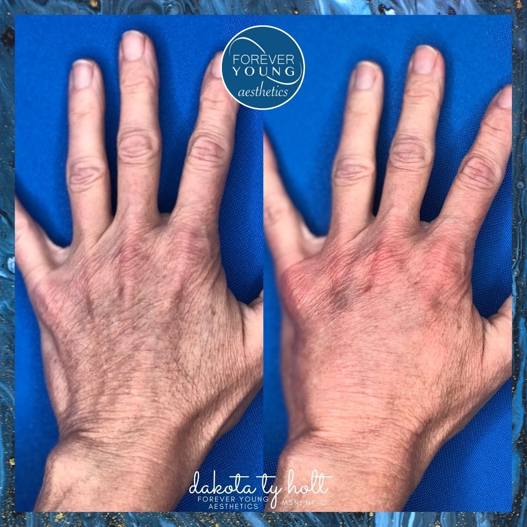 Hand Rejuvenation at Forever Young Aesthetics in Tampa FL