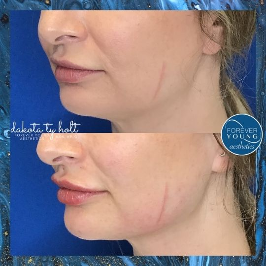 Lip Filler with Juvederm Vollure in Tampa FL
