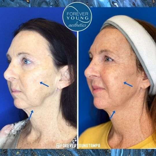 Lower Face Lift Jawline with Radiesse in Tampa FL