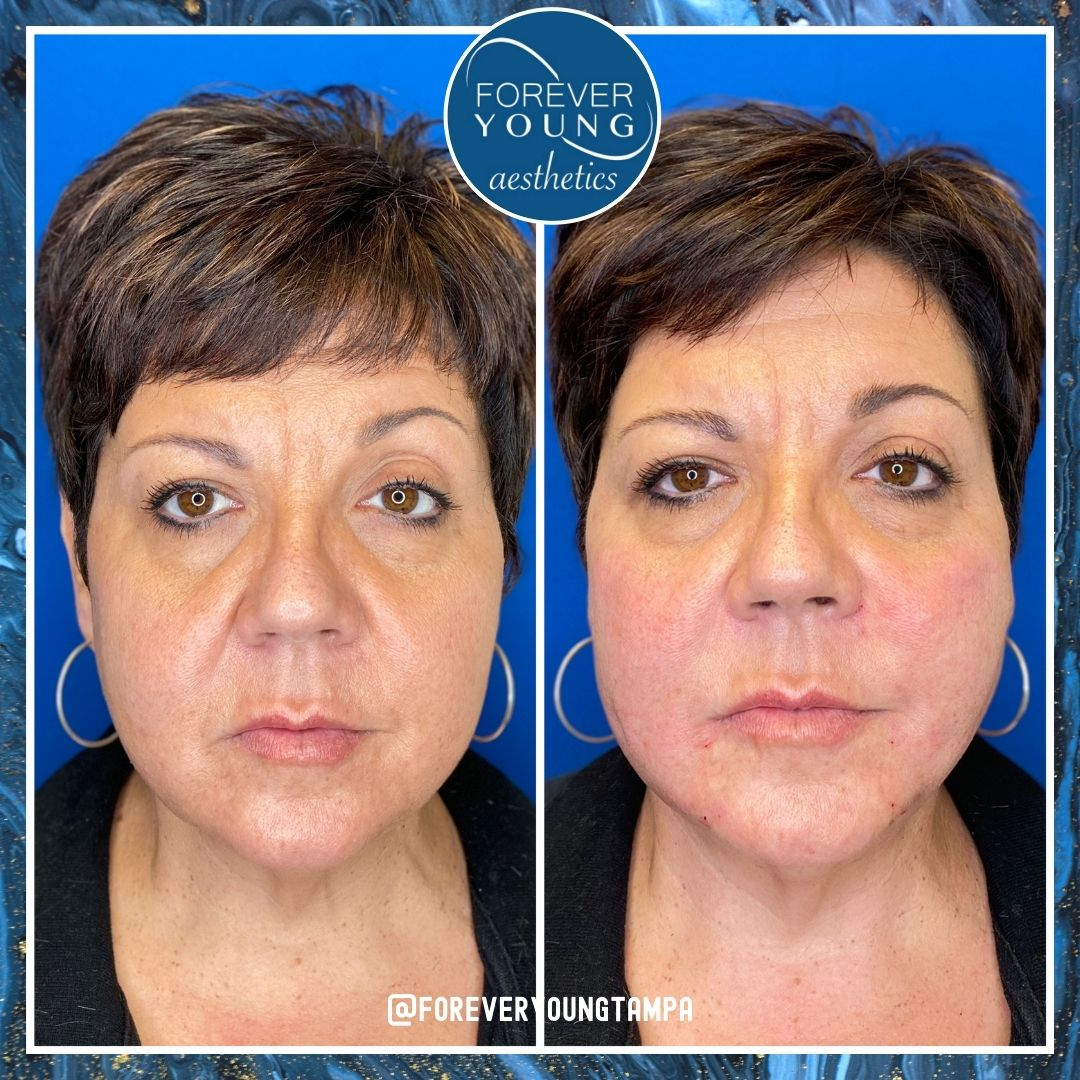 Jowls & Jawline Lift at Forever Young Aesthetics in Tampa FL