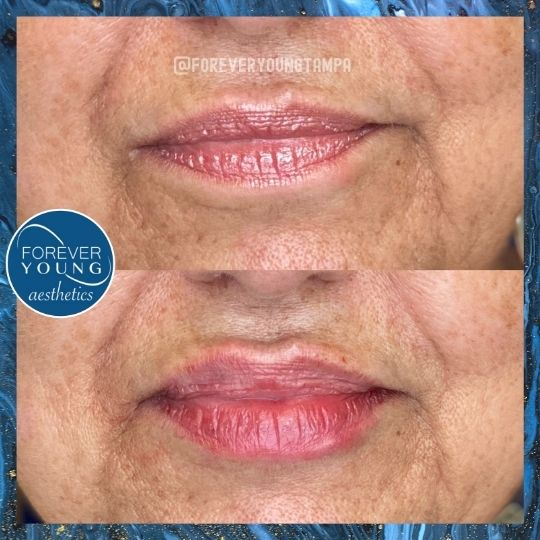 Lip Augmentation at Forever Young Aesthetics in Tampa FL