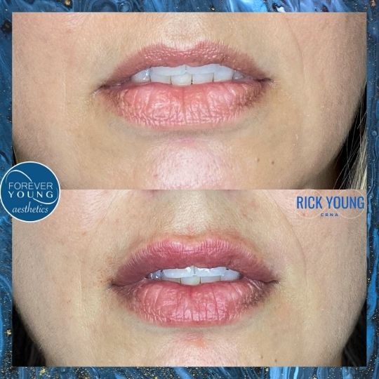 Lip Correction at Forever Young Aesthetics in Tampa FL