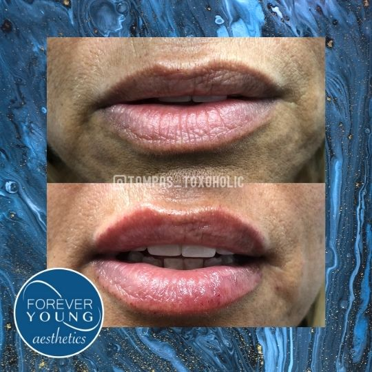 Lip Filler at Forever Young Aesthetics in Tampa FL