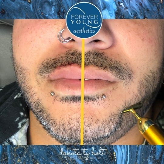 Lip Rejuvenation at Forever Young Aesthetics in Tampa FL