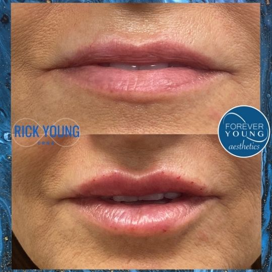 Lips with Juvederm Ultra at Forever Young Aesthetics in Tampa FL