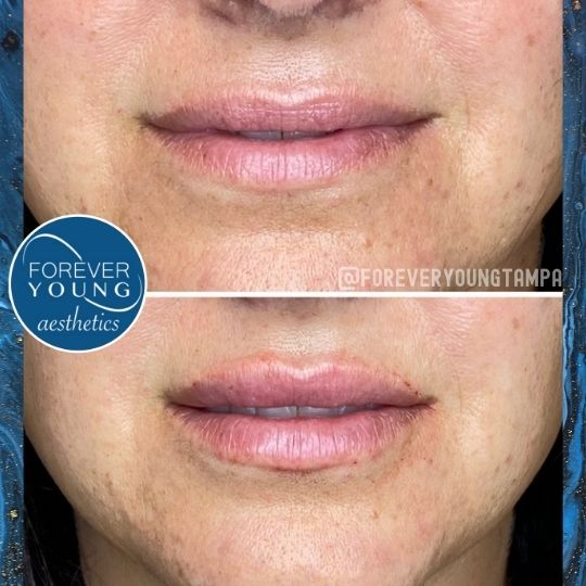 Lips with Restylane Kysse at Forever Young Aesthetics in Tampa FL