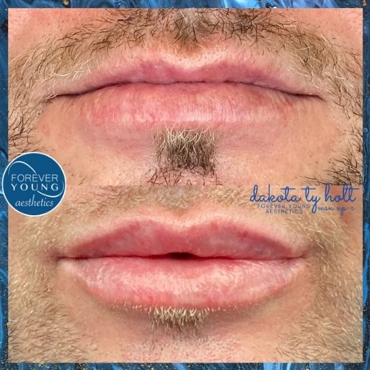 Male Lip Filler with Juvederm Vollure at Forever Young Aesthetics in Tampa FL