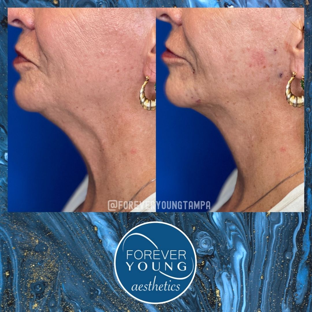 PDO Thread Lift with Sculptra at Forever Young Aesthetics in Tampa FL