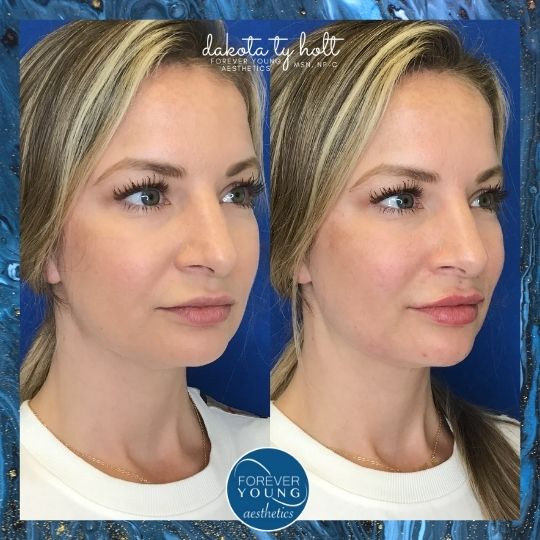Before and After Photo of Midface Augmentation at Forever Young Aesthetics in Tampa FL