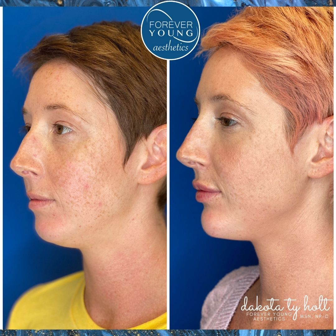 Before & After Photo of Midface Augmentation at Forever Young Aesthetics in Tampa FL