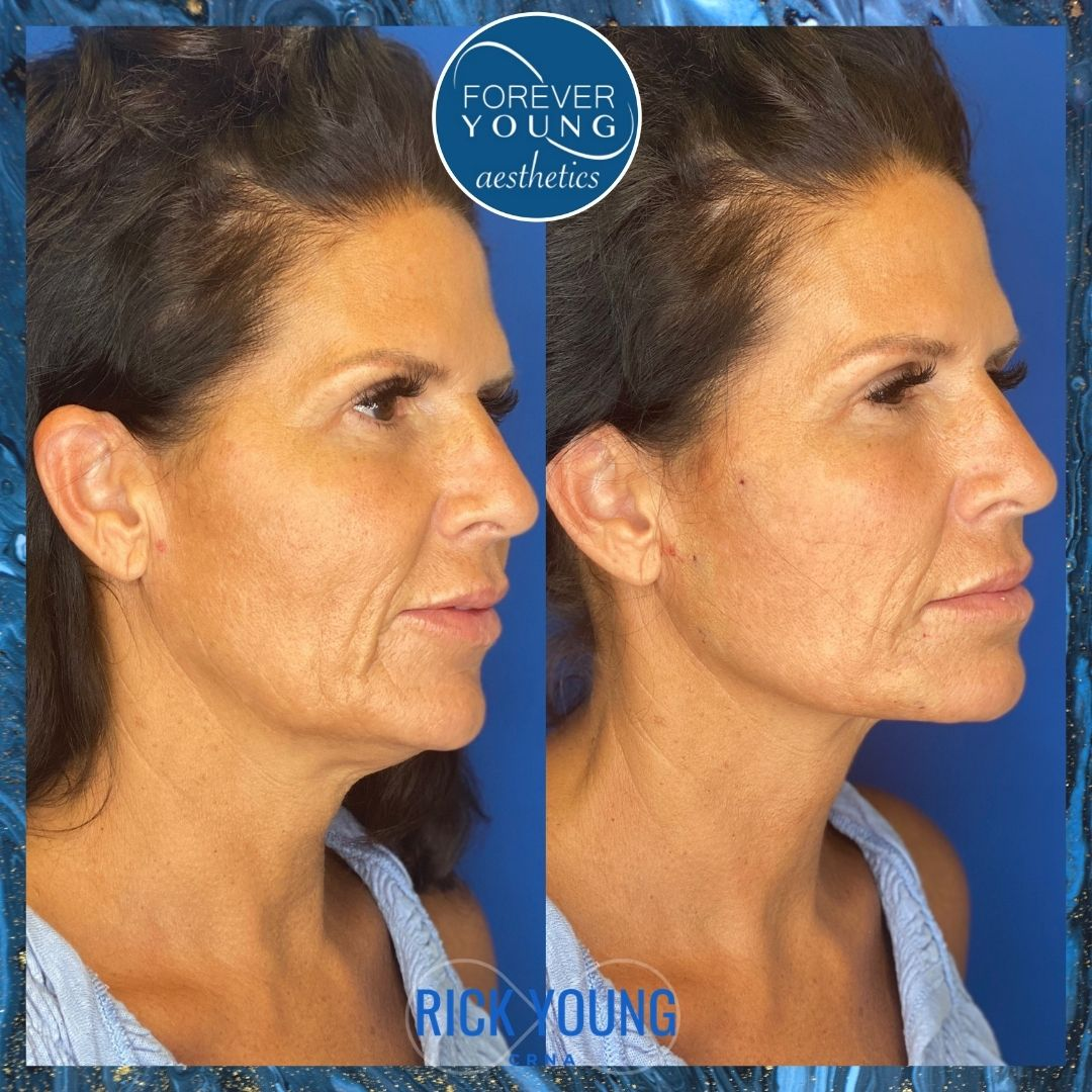 Before & After Photo of Threadlift at Forever Young Aesthetics in Tampa FL