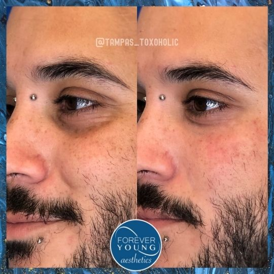 Before and After Eye Troughs Photo Gallery at Forever Young Aesthetics in Tampa FL