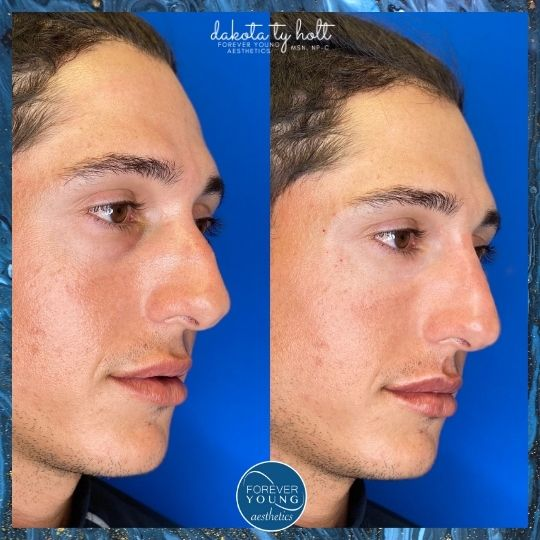 Botox Before and After Photo Gallery at Forever Young Aesthetics in Tampa FL