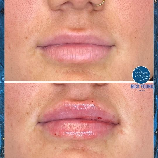 Dermal Fillers in Lips at Forever Young Aesthetics in Tampa FL