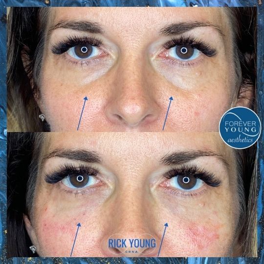 Eye Bag Filler at Forever Young Aesthetics in South Tampa FL