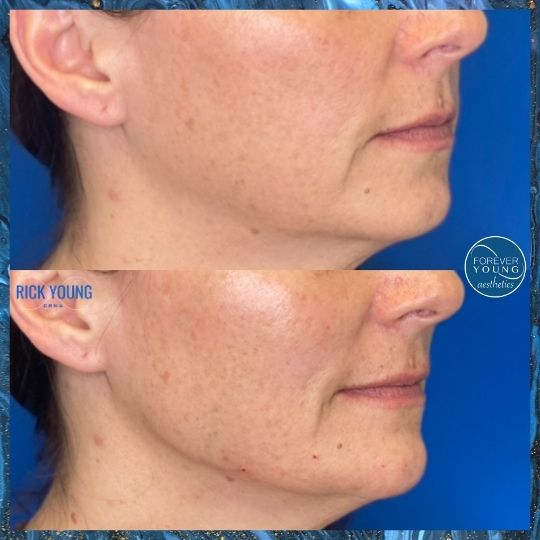 Jawline Filler with Voluma at Forever Young Aesthetics in Tampa FL