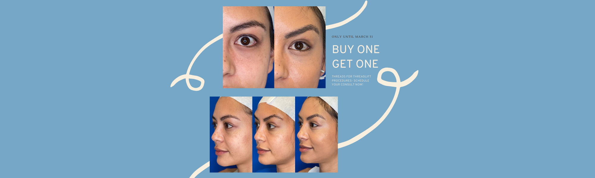 Juvederm Treatment Threadlift Promo Banner for Forever Young Aesthetics in Tampa FL
