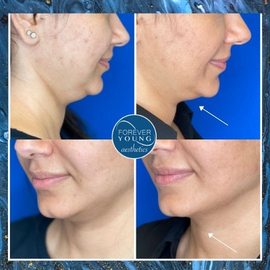 Kybella Treatment Gallery Photo at Forever Young Aesthetics in Tampa FL