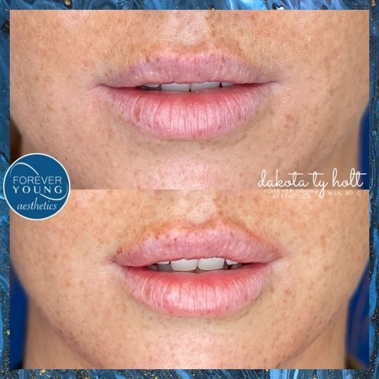 Natural Lip Filler at Forever Young Aesthetics in South Tampa FL