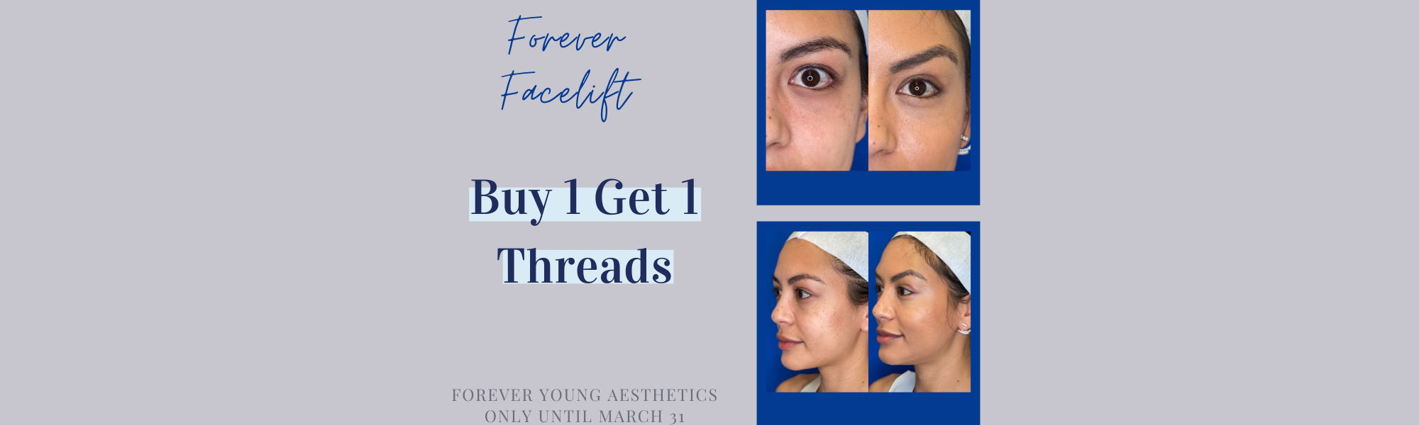 South Tampa Events and Promos at Forever Young Aesthetics in South Tampa FL