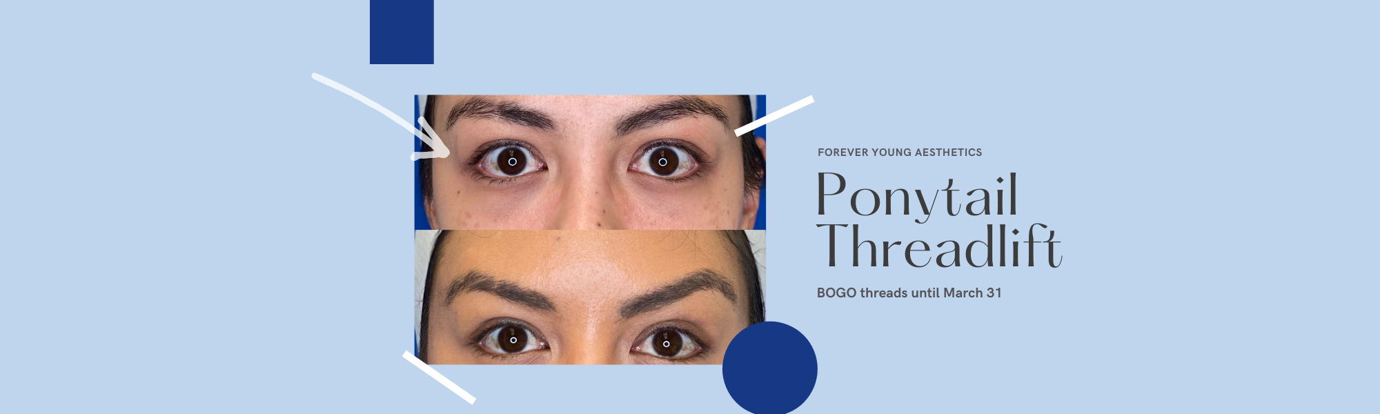 Threadlift Banner with Before & After Photos in Tampa FL