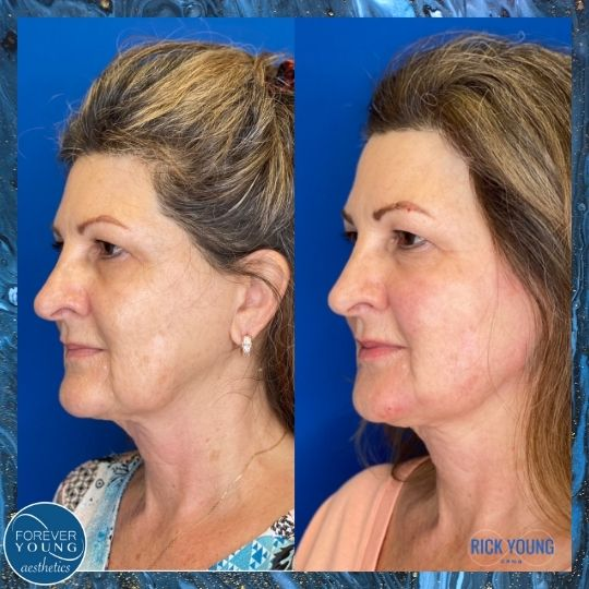 Threadlift Treatment Photo at Forever Young Aesthetics in South Tampa FL