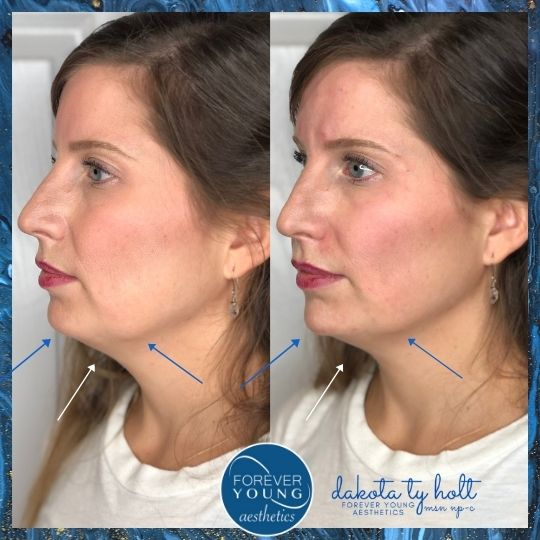 Voluma Filler for Jawline at Forever Young Aesthetics in Tampa FL