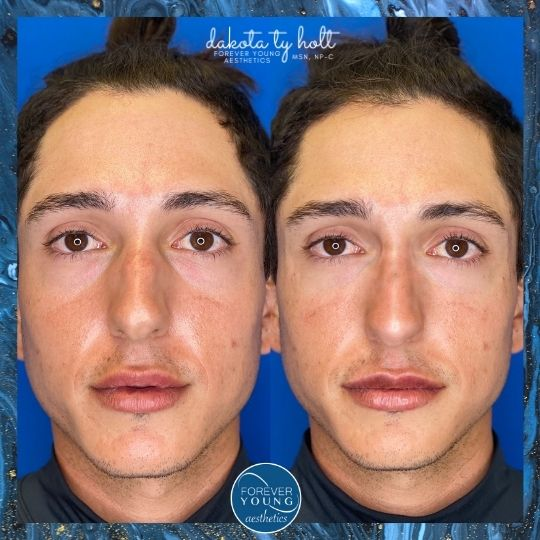 Xeomin Treatment Photo at Forever Young Aesthetics in Tampa FL