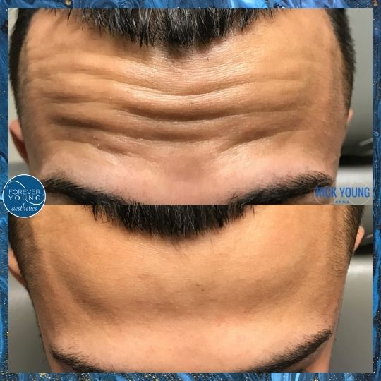 Xeomin Treatment on Males at Forever Young Aesthetics in Tampa FL