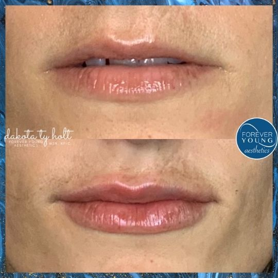 Before & After Lip Filler at Forever Young Aesthetics in Tampa FL