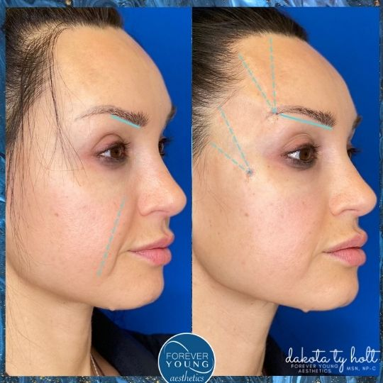 Eyebrow Lift at Forever Young Aesthetics in Tampa FL
