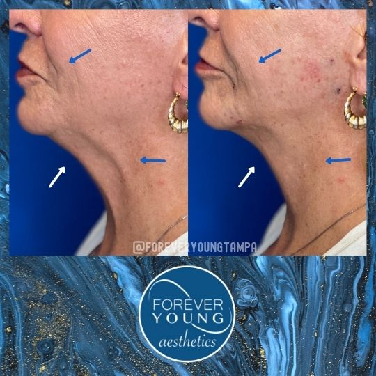 Face Lift with Threads at Forever Young Aesthetics in Tampa FL