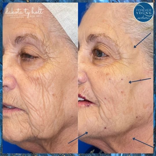 Full Face Lift with Threads by Forever Young Aesthetics in Tampa FL