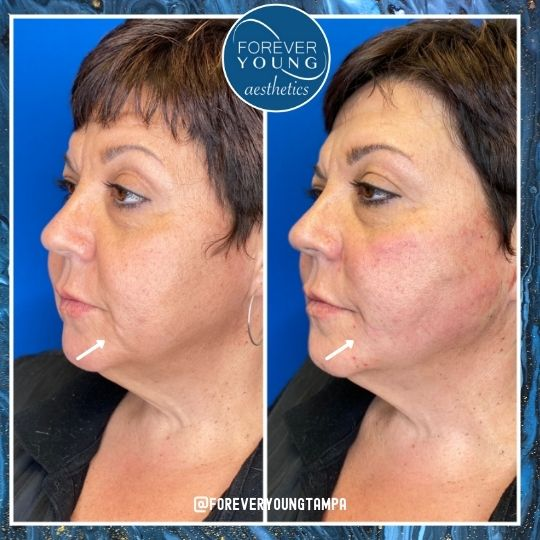 Jawline & Jowl Correction by Thread Lift at Forever Young Aesthetics in Tampa FL