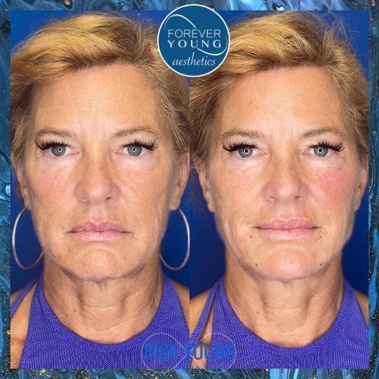 Jowl Correction by Thread Lift at Forever Young Aesthetics in Tampa FL