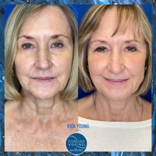 Jowls with Sculptra Before & After Photo by Forever Young Aesthetics in Tampa FL
