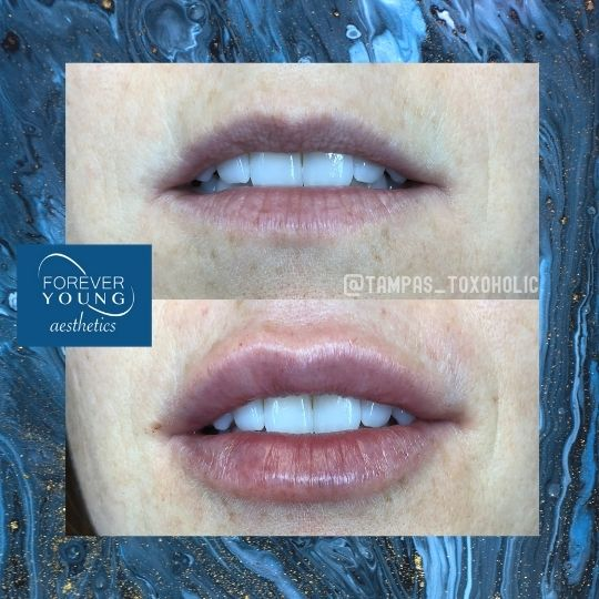 Lip Filler Before and After by Forever Young Aesthetics in Tampa FL