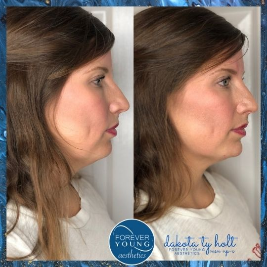 Lower Face Before & After Photo at Forever Young Aesthetics in Tampa FL