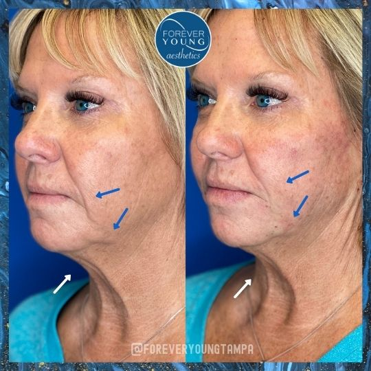Lower Face Lift with Threads at Forever Young Aesthetics in Tampa FL