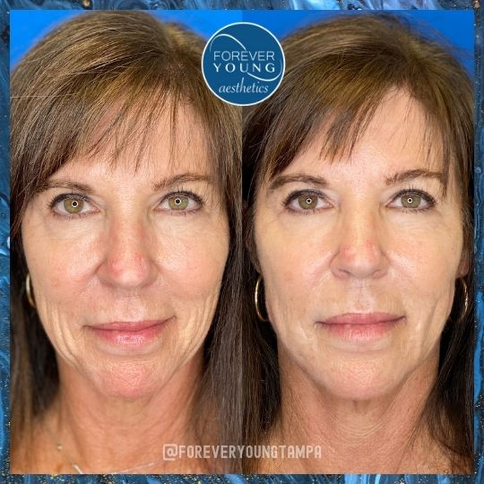 Lower Face Thread Lift at Forever Young Aesthetics in Tampa FL