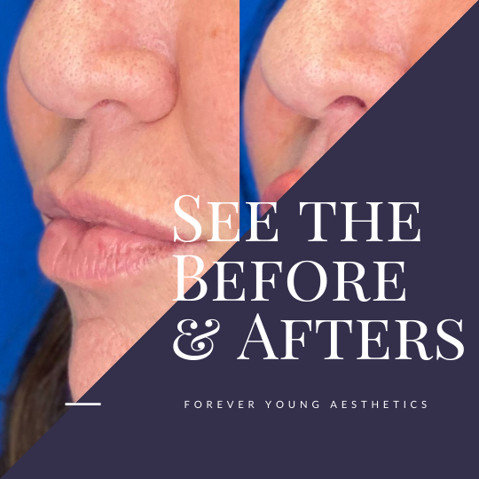 Restylane Filler Treatment Gallery at Forever Young Aesthetics in Tampa FL