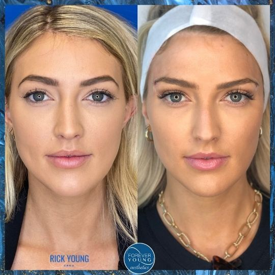 Thread Lift Procedure Gallery Photo at Forever Young Aesthetics in Tampa FL