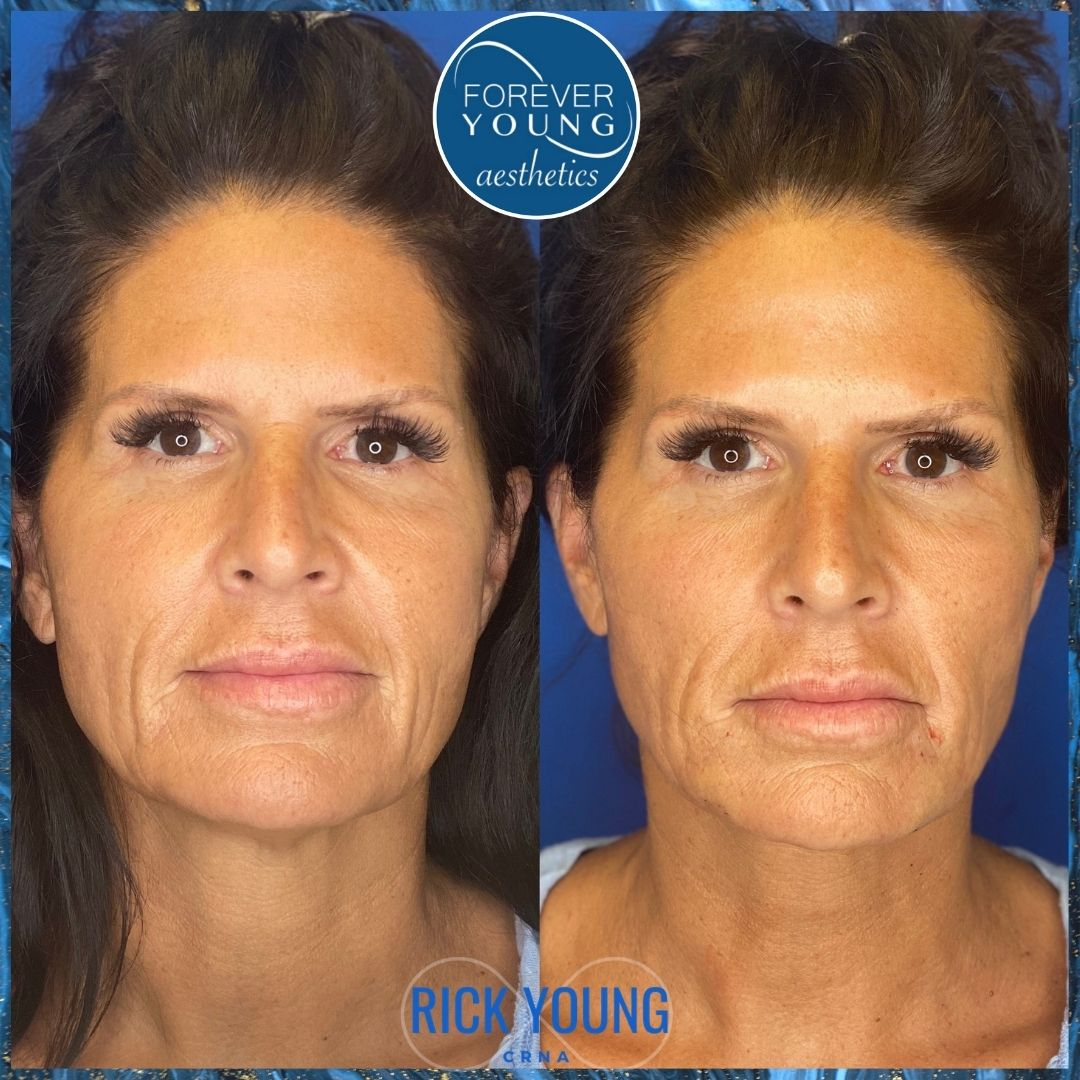 Threadlift with Sculptra at Forever Young Aesthetics in Tampa FL