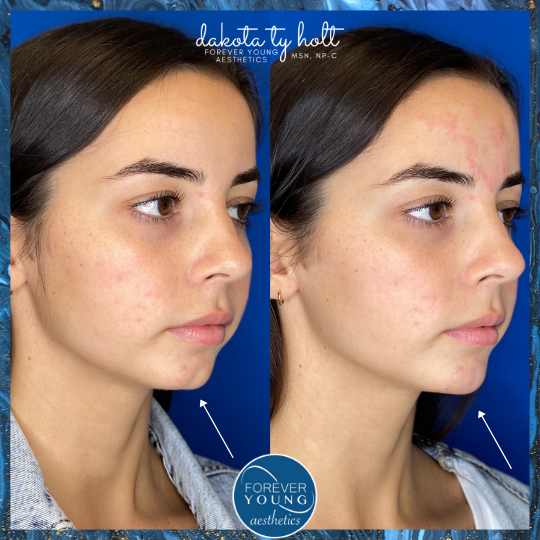 Voluma for Chin Filler by Forever Young Aesthetics in Tampa FL