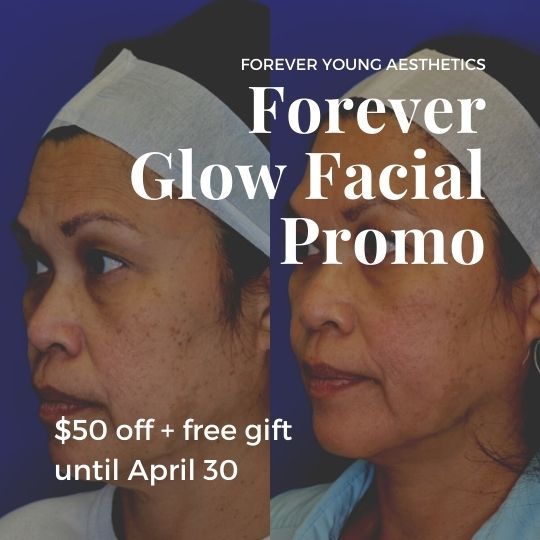 Diamond Glow Promo on Thread Lift Page for Forever Young Aesthetics in Tampa FL