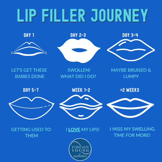Lip Filler Chart by Forever Young Aesthetics in Tampa FL