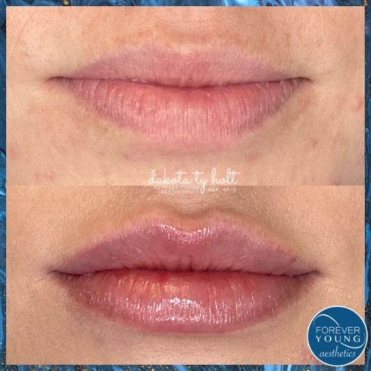 Lip Filler at Medispa Forever Young Aesthetics in Tampa FL