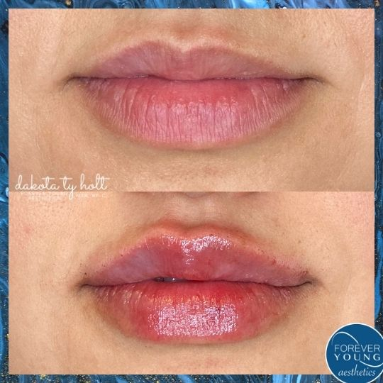 Lip Fillers at Forever Young Aesthetics in Tampa FL
