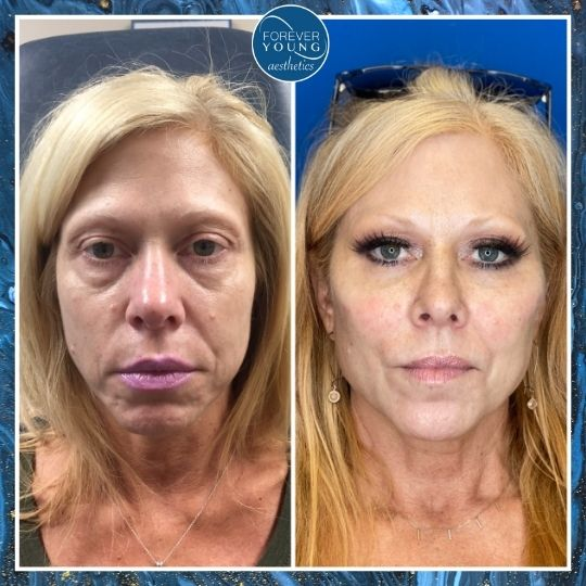 Liquid Face Lift by Forever Young Aesthetics in Tampa FL