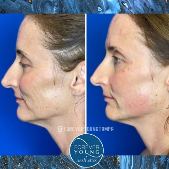 Lower Face Threadlift at Forever Young Aesthetics in Tampa FL